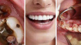 Bakteria gigi boleh berjangkit, hati-hatilah bila kucup pasangan, anak-anak