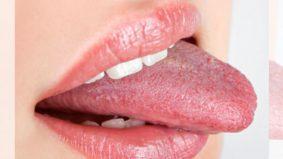Jadi pelat bukan dek lidah pendek ya. Ini puncanya…