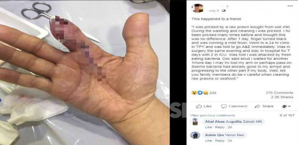 Lelaki hilang jari akibat tertusuk udang, nasihat orang ramai supaya lebih berhati-hati