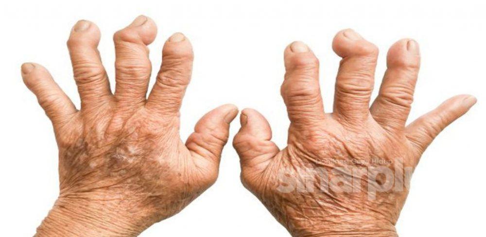PRAK bunyi dia! Itu adalah bunyi tulang yang meletup bila korang lakukan regangan sama ada jari atau pinggang.