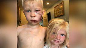 Kasihnya abang… Budak lelaki selamatkan adik yang diserang anjing dipuji warganet